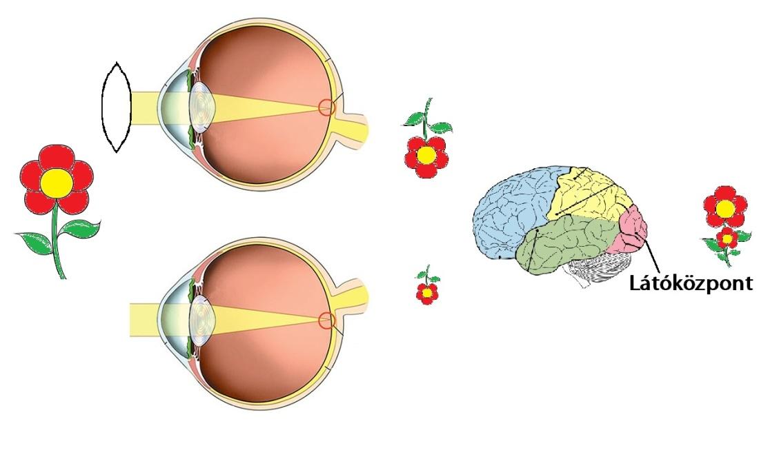 zselatin és látás Bates látáskorrekció