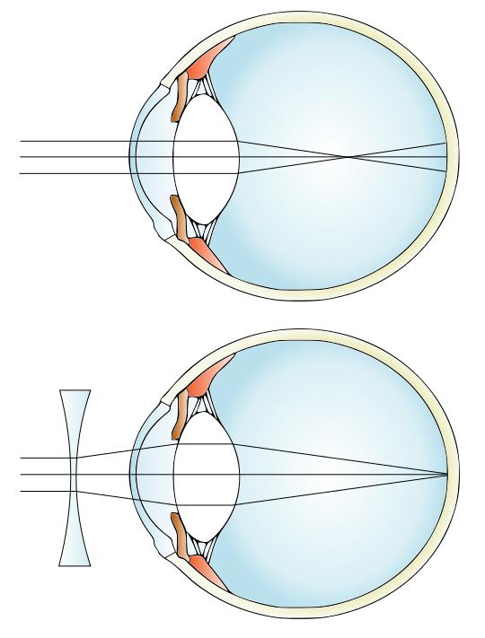 hogy a C-vitamin hogyan befolyásolja a látást látás franciául