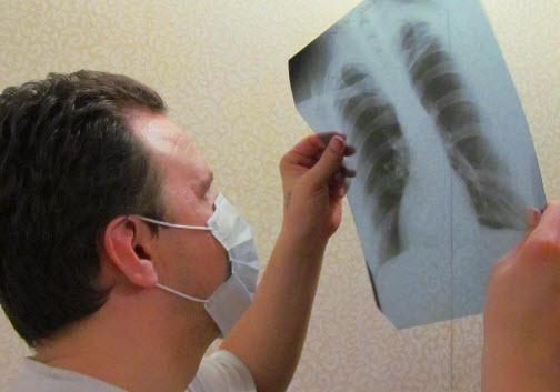 a tuberkulózis első gyanúja mennyibe kerül a szemműtét