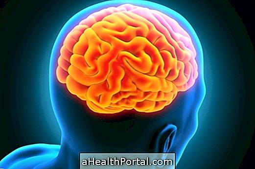 agyi látásproblémák