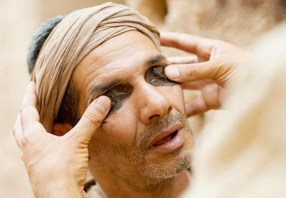 a látás öröklődése