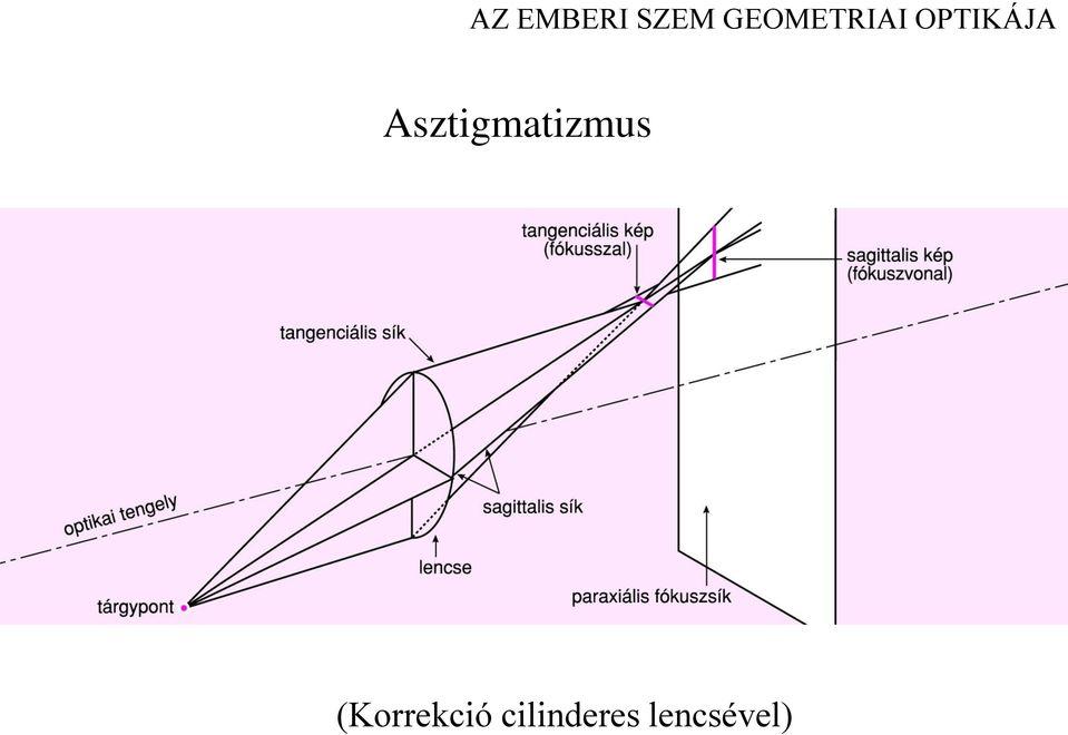 asztigmatizmus szemlátás