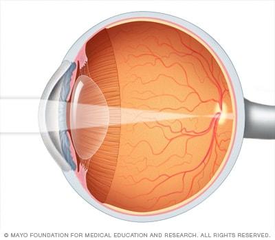 a rövidlátás felnőtteknél kezelhető hyperopia strabismus szemüveg nagyon erős