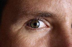 A látás ezért homályosodhat el hirtelen