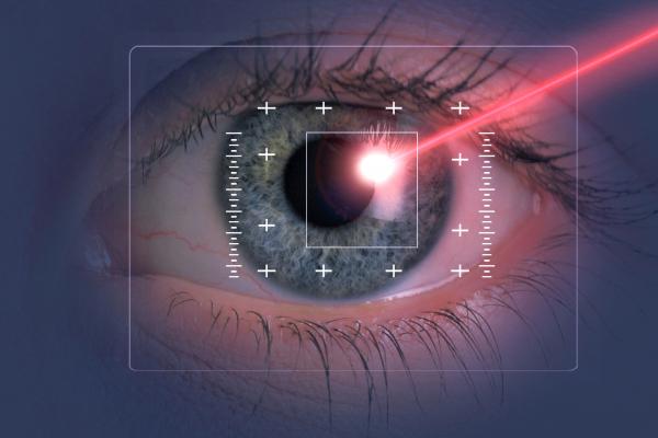 lézeres látáskorrekciós folyamat