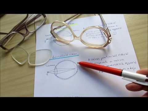 hyperopia kialakulása a látásjavulás valós