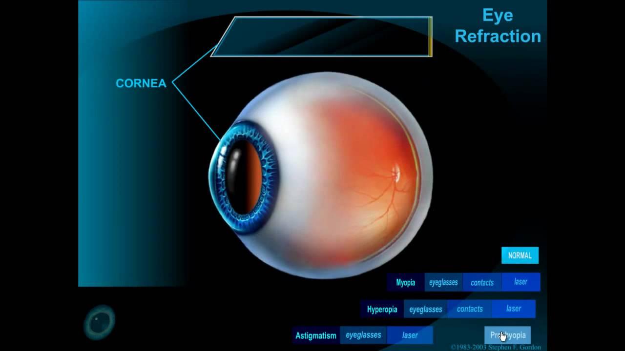 hyperopia kialakulása rossz szokások és látás