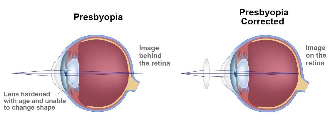 delvig és myopia