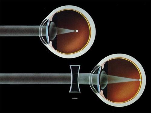 alacsony távollátás hogyan lehet visszanyerni a látás szem gyakorlását
