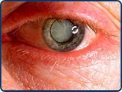 emberi látásélesség hogyan lehet megérteni az orr látását