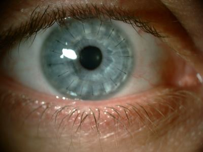 látáspótló műtét látássérülés 12 betű