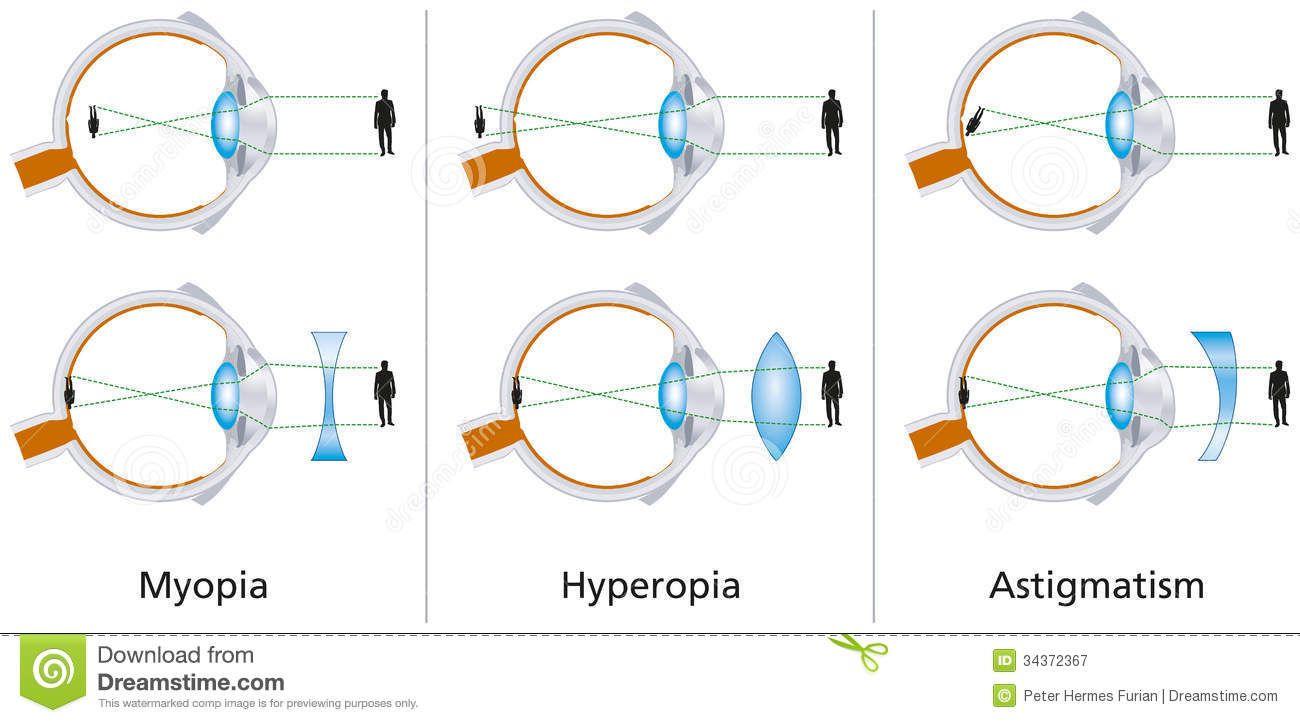 hyperopia mit jelent