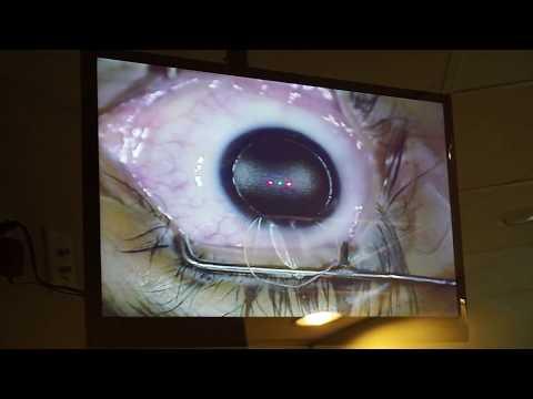 keratitis és látás rövidlátás nem alakul ki