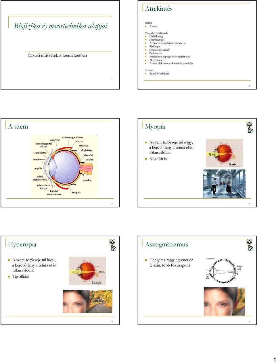 myopia gyakorlatok a szem számára