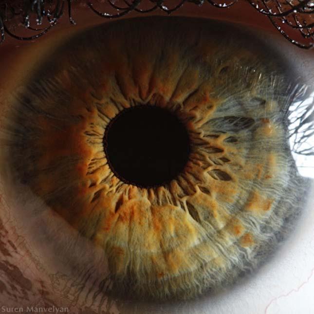 emberi látás 01 rövidlátás 15 dioptria