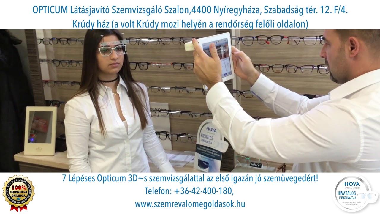látásbetegségek myopia téves rövidlátás