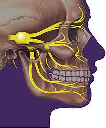 Homályos látás & Módosult tudatállapot & Trigeminus neuralgia: okok – Symptoma