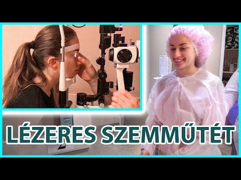 Lézeres szemműtét videók