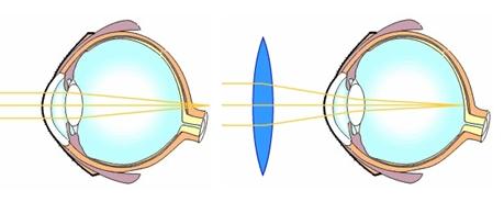 hogyan lehet helyreállítani a látástáblát