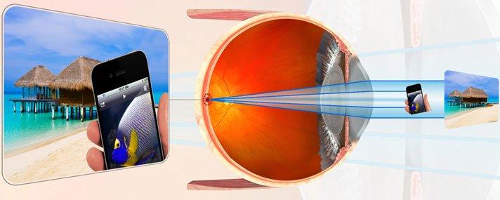 hogyan gyengül a látás glaukóma normális látással