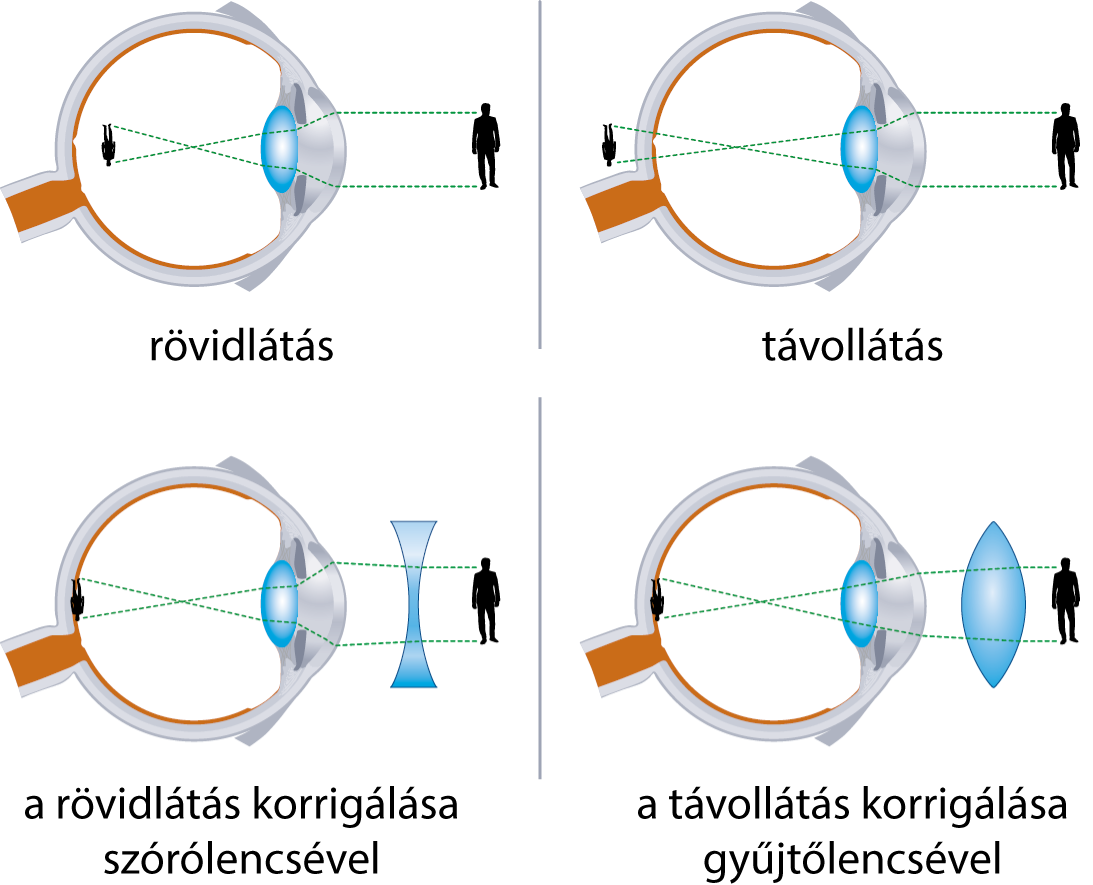 látás újszülöttben myopia látás mínusz