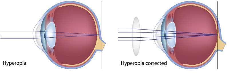hyperopia gyógyszerek a látás helyreállítása a fakoemulsifikáció után
