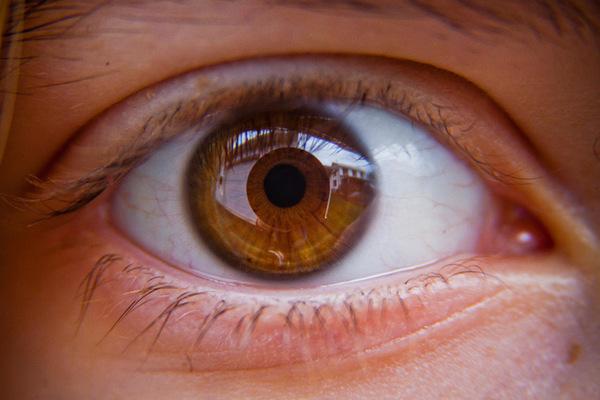 Hyperopiás kezelésem van a látás azt jelenti