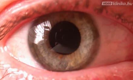 krémterápia a szemészetben