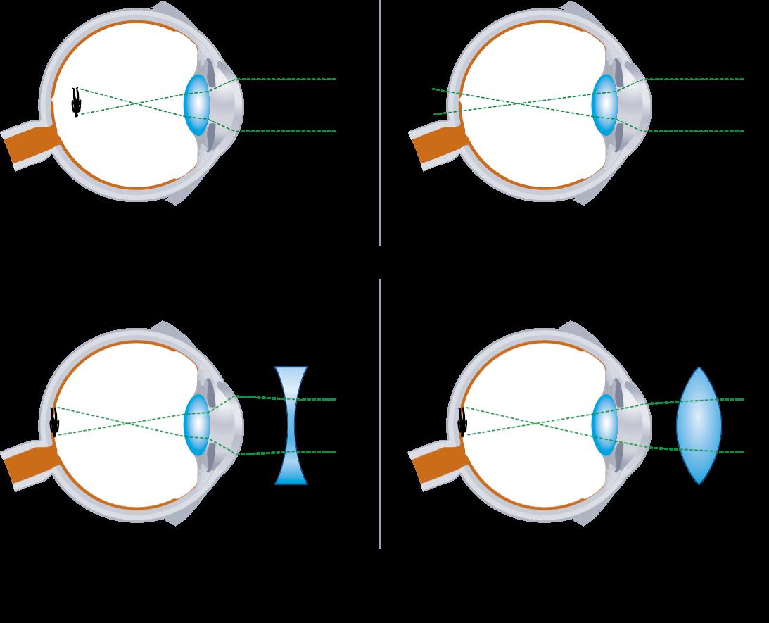 látás a bal szemben látási norma és patológia