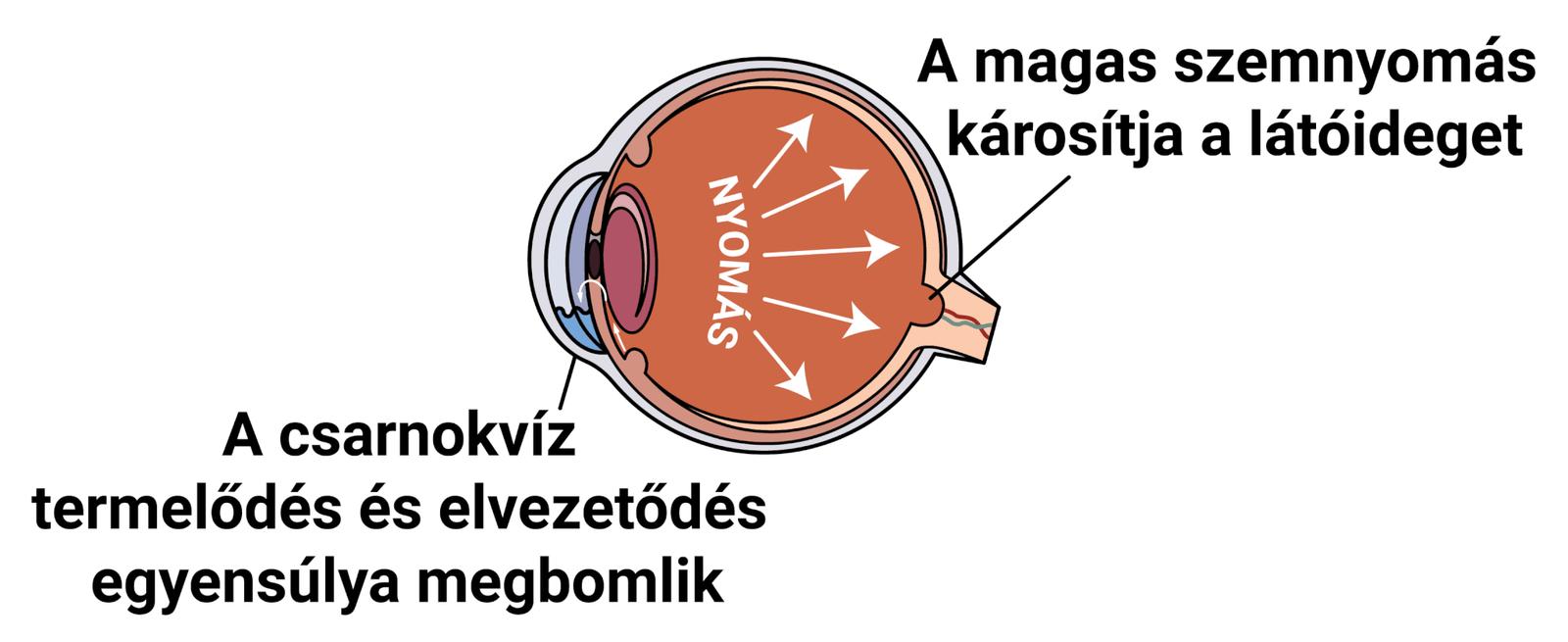 látás látóideg colobomával
