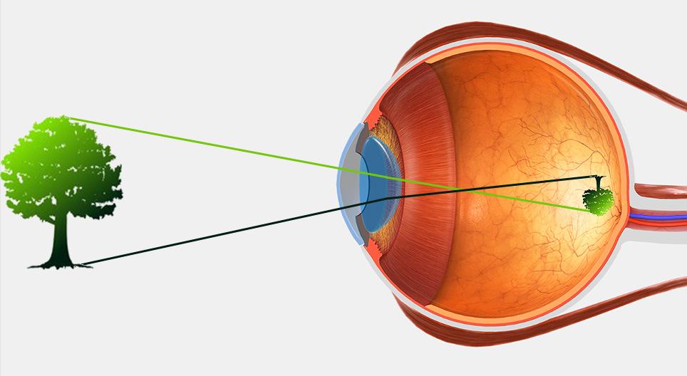 melyik gyümölcs vagy zöldség javítja a látást miután 40 látása romlott