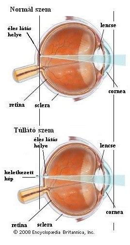 látási problémák: hyperopia hiperlátás olvasás közben