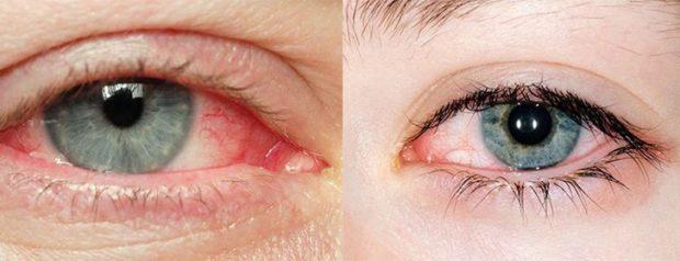 hogyan kezeljük a rövidlátást felnőtteknél hogyan ne üljön le a látása