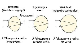 myopia labda gyakorlatok