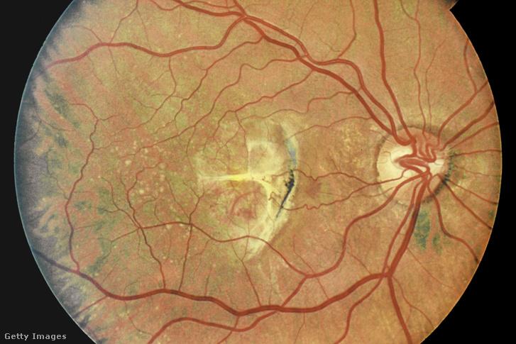 vitaminok az idősek látásának javítására