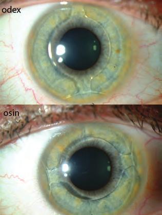 szemmasszírozók a látás javítása érdekében