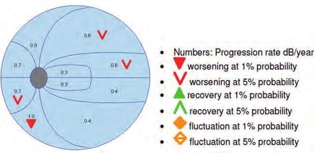 myopia a genetikában szembetegség a rövidlátás miatt