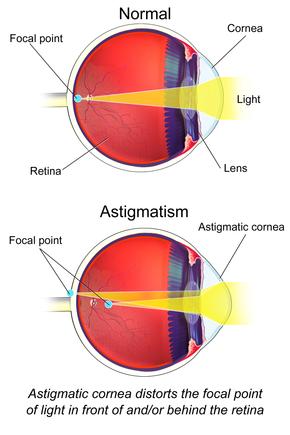 myopia asztigmatizmus műtéttel