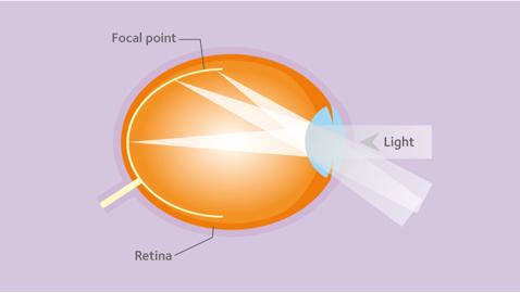 myopia fokozat mi ez