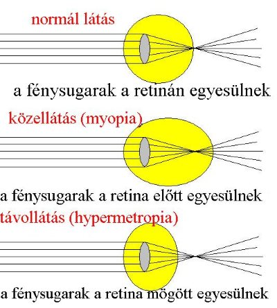 myopia és hyperopia optikai rendszerek