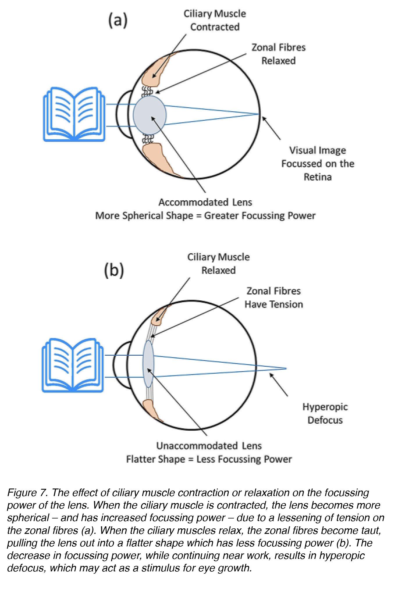 myopia és hyperopia vagy vizuális hangerő-ellenőrzés