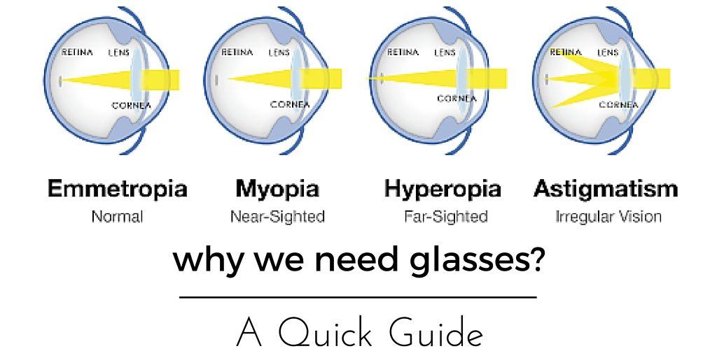 myopia és hyperopia vagy vitaminok a rövidlátáshoz