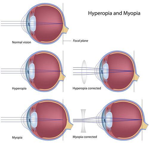 myopia és hyperopia vizsga betűtípus a táblázat nézet