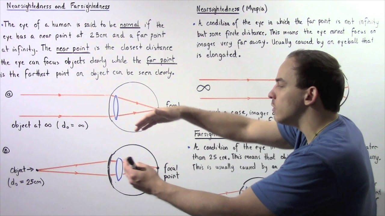 érdekes tények a myopia hyperopia szállásról a látásélesség javítása