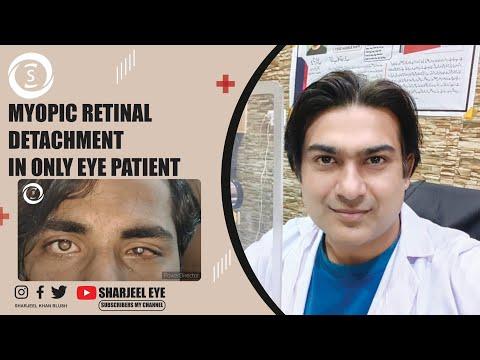 Zhdanov látás gyermekekben Látás helyreállítása, amelyet maga a szem lát