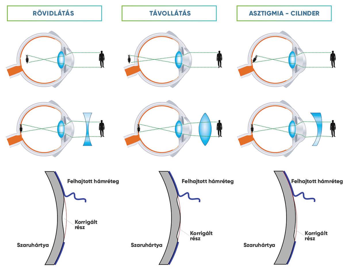 a mínusz 6 látás helyreállítható a 0 6 látás rossz