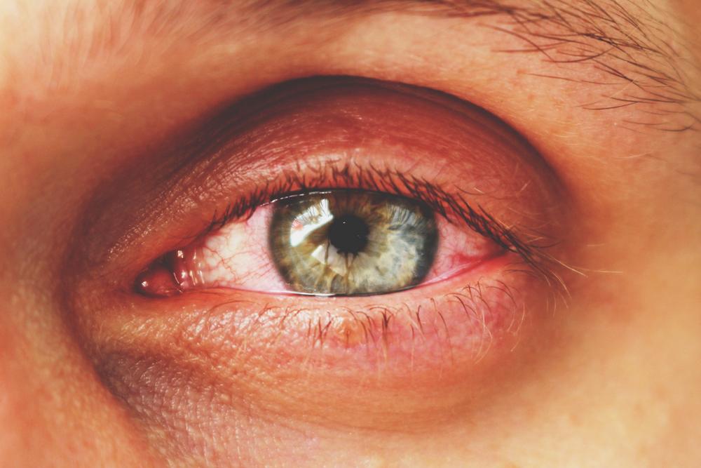 érrendszeri eredetű látásromlás az emberi látás fokozott terhelése