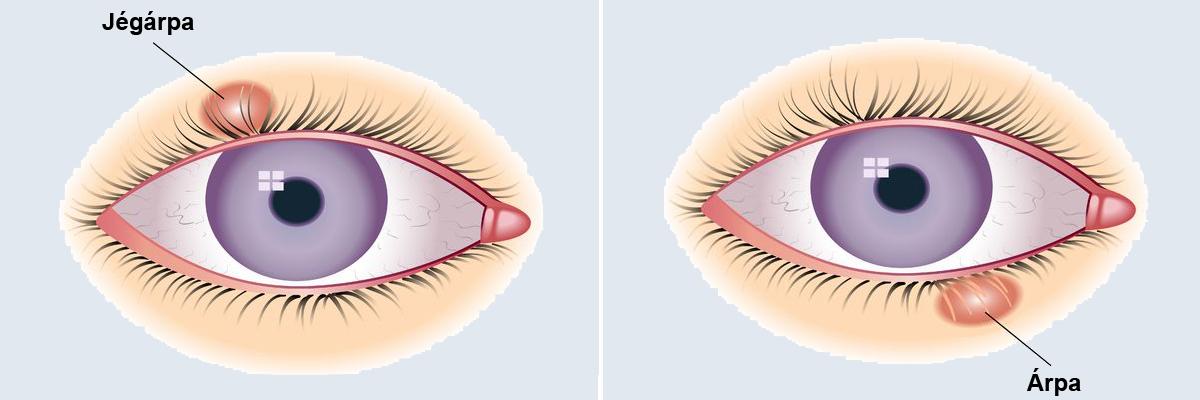 Tech: Szupererőt ad a szemeknek az új kontaktlencse, a sötétben is lát vele az ember | av-multitours.hu