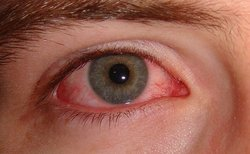 szemészeti szemkontúzió megjegyezve az asztalt látás céljából