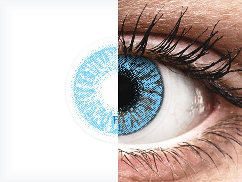 mit kell inni látásvesztés esetén milyen látásból ülhet le